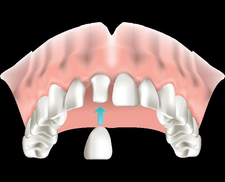 Zahnkrone Zahnersatz